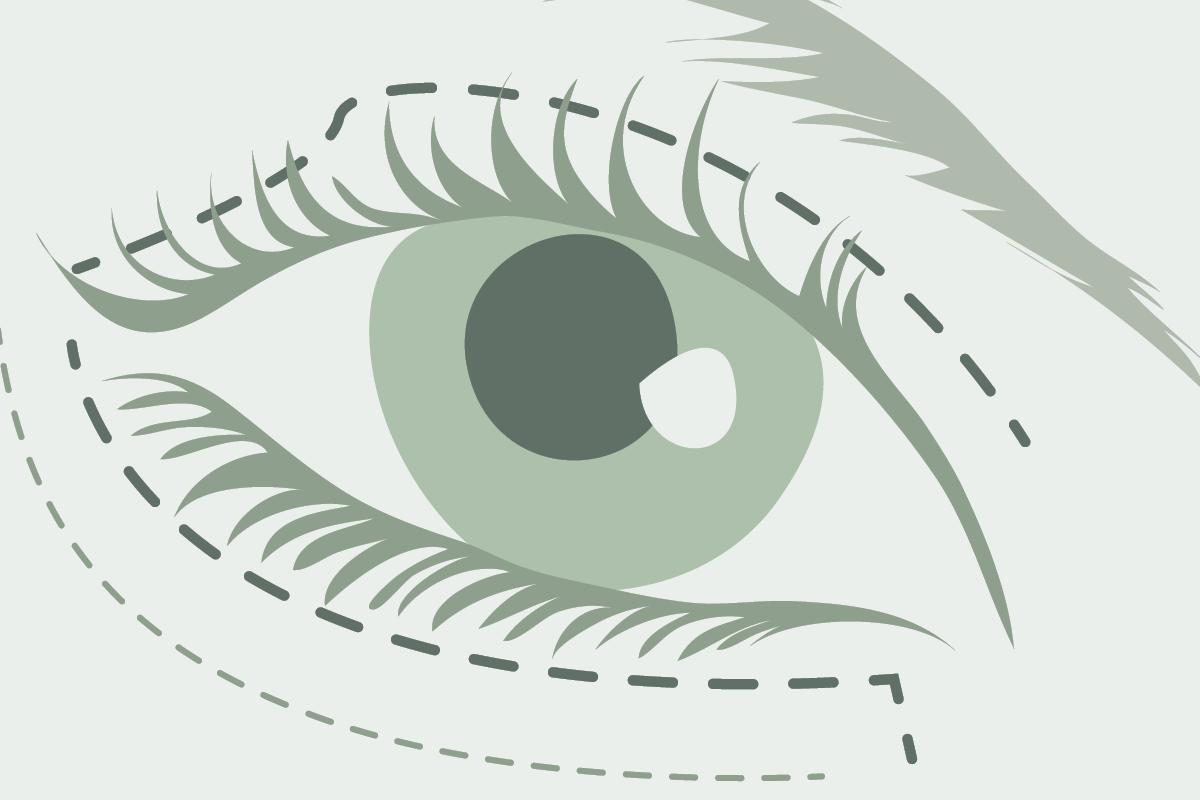 Dr. Marweh Schmitz Nürnberg Ästhetische Chirurgie Augenlidkorrektur