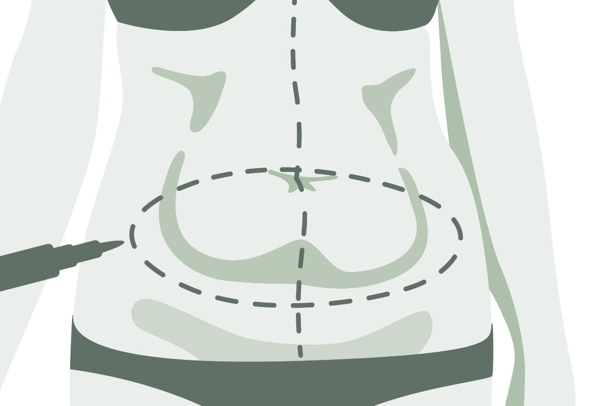 Dr. Marweh Schmitz Nürnberg Ästhetische Chirurgie Bauchdeckenstraffung Bauchstraffung