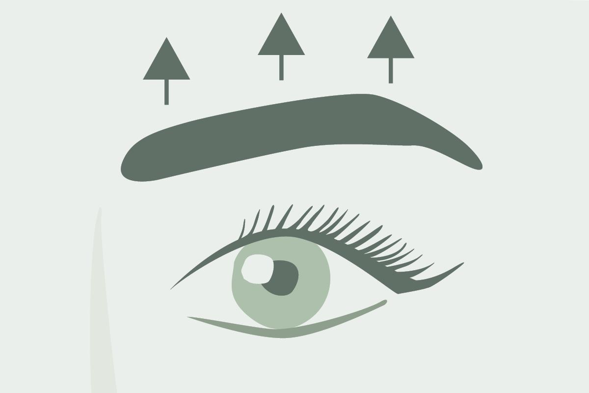 Dr. Marweh Schmitz Nürnberg Ästhetische Chirurgie Brauenlift Augenbrauenlift
