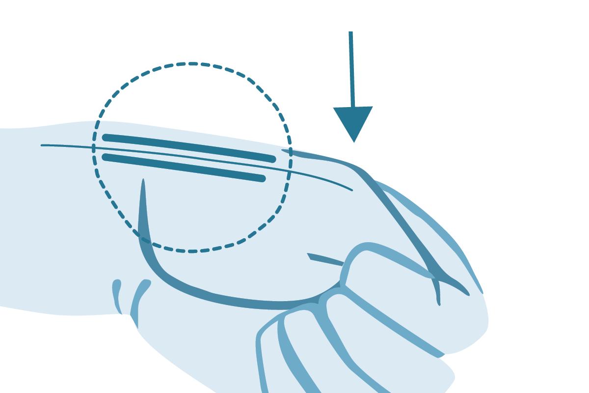 Dr. Marweh Schmitz Nürnberg Handchirurgie Einengung des Strecksehnenfaches
